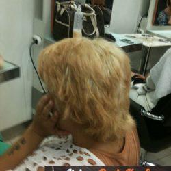 mikro kapsül saç kaynak resim 22