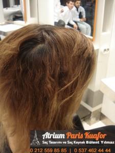 mikro kapsül saç kaynak resim 5