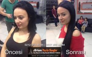 Görünmez Mikro Saç Kaynağı Uygulaması