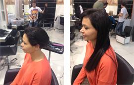 saç kaynak öncesi ve sonrası