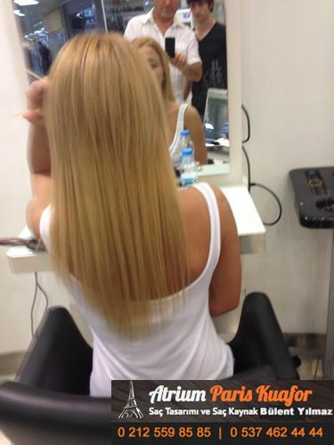 saç kaynağı öncesi ve sonrası 17