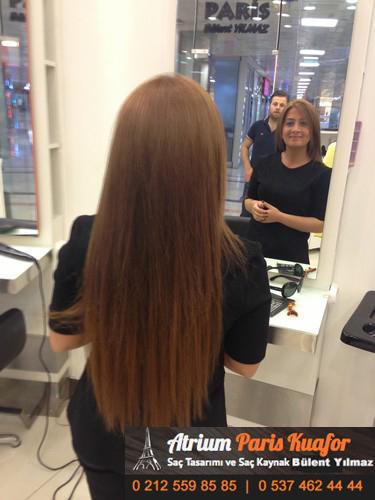 saç kaynağı öncesi ve sonrası 21