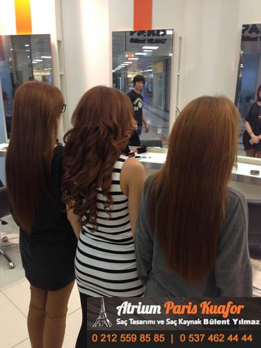 saç kaynağı öncesi ve sonrası 2