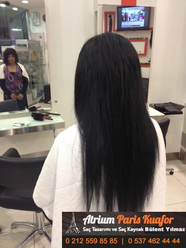 saç kaynağı öncesi ve sonrası 23