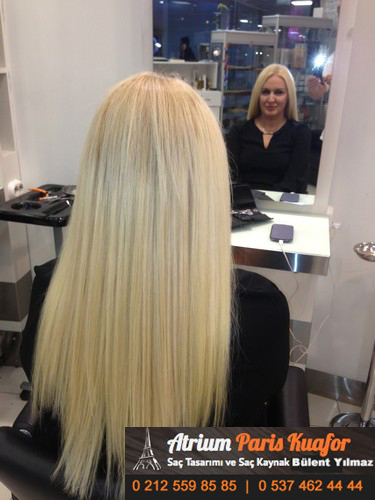 saç kaynağı öncesi ve sonrası 27