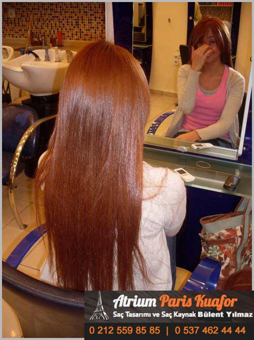 saç kaynağı öncesi ve sonrası 39
