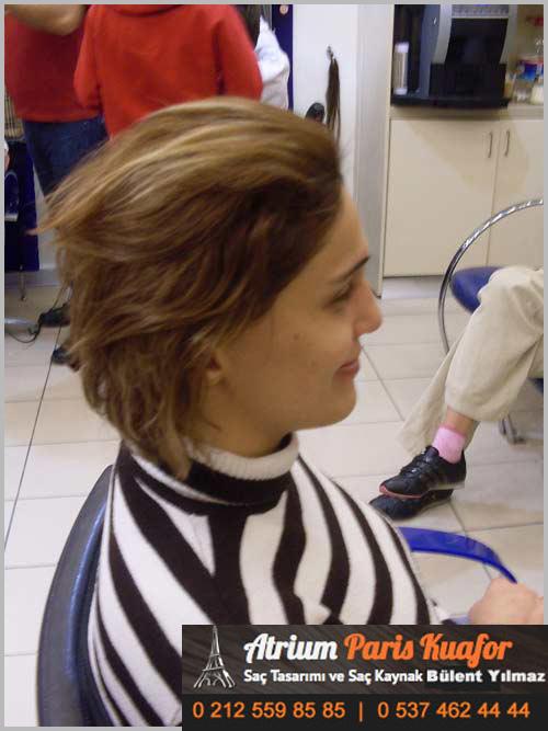 saç kaynağı öncesi ve sonrası 40