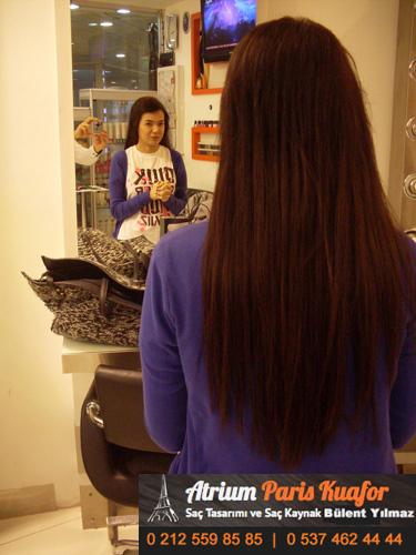 saç kaynağı öncesi ve sonrası 52