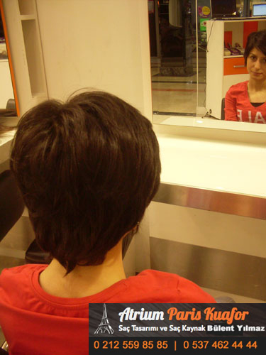 saç kaynağı öncesi ve sonrası 53