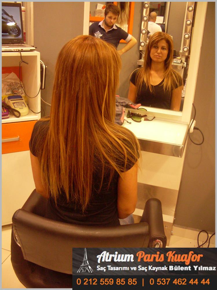 saç kaynağı öncesi ve sonrası 56