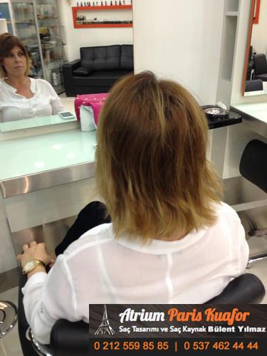 saç kaynağı öncesi ve sonrası 5