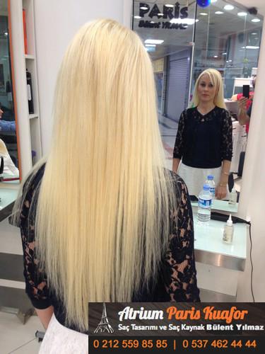 saç kaynağı öncesi ve sonrası 7
