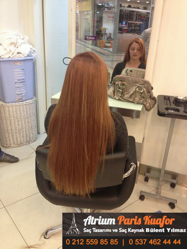 saç kaynağı öncesi ve sonrası 9