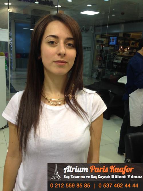 saç kaynak öncesi ve sonrası 1