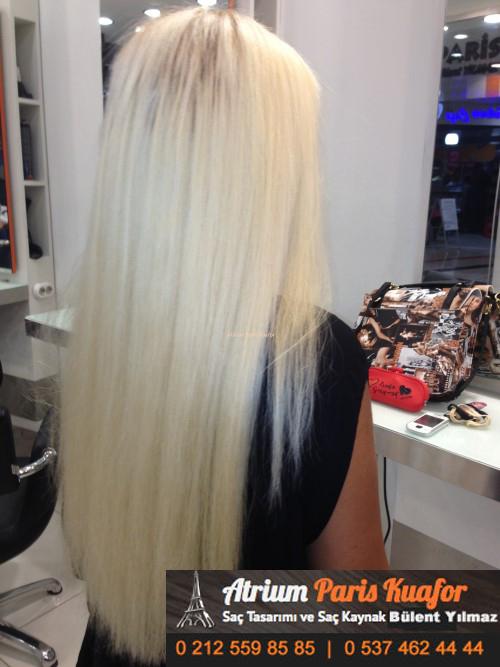 saç kaynak öncesi ve sonrası 10