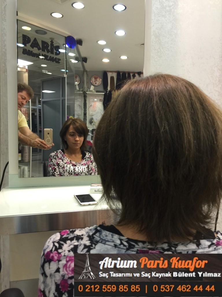 saç kaynak öncesi ve sonrası 100