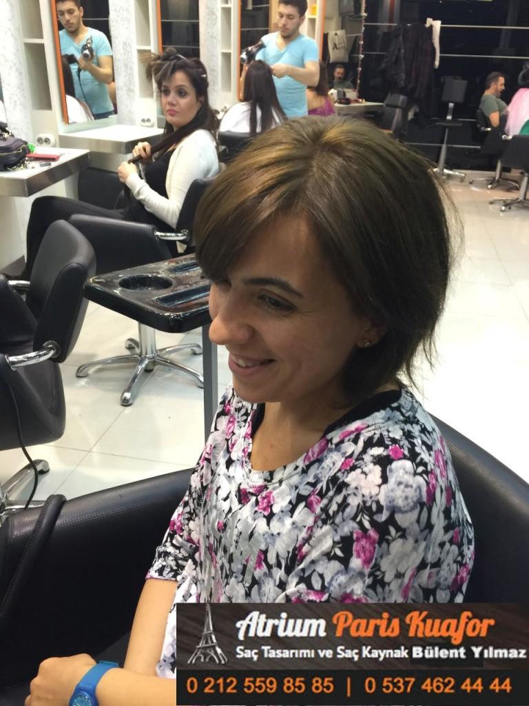 saç kaynak öncesi ve sonrası 101
