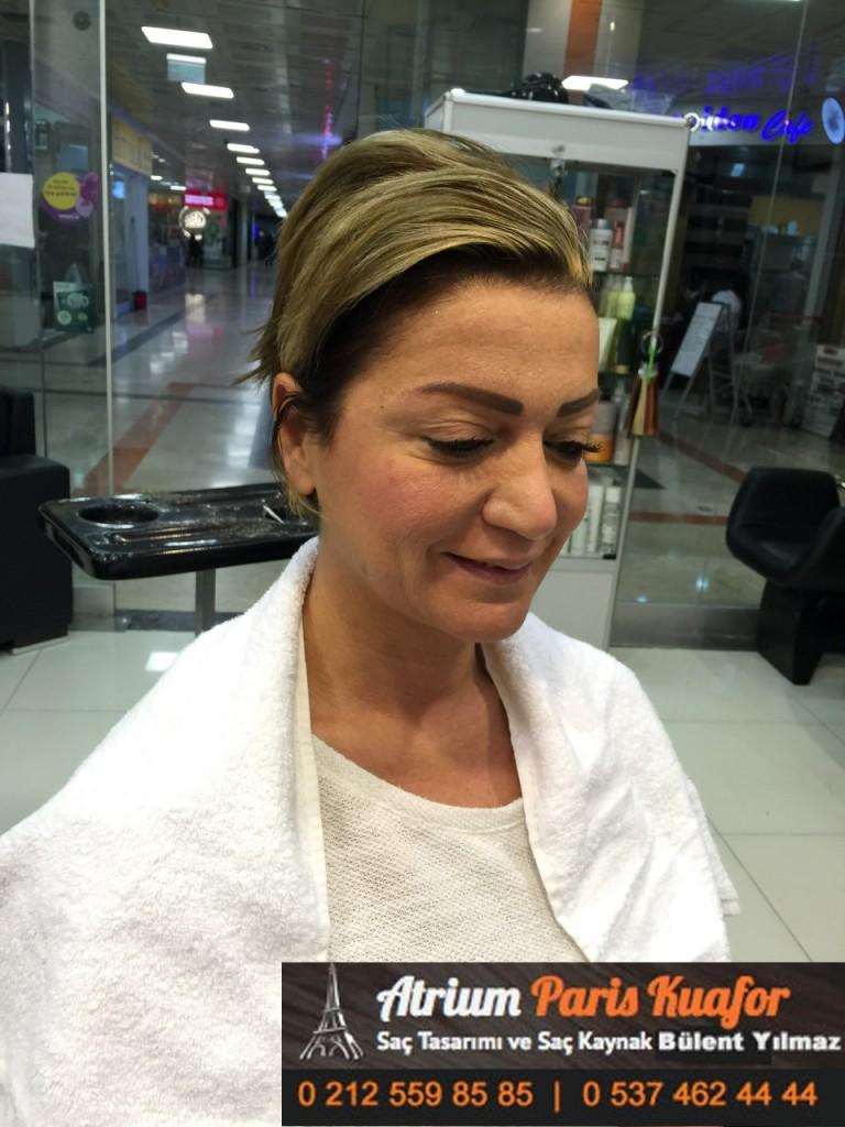 saç kaynak öncesi ve sonrası 105