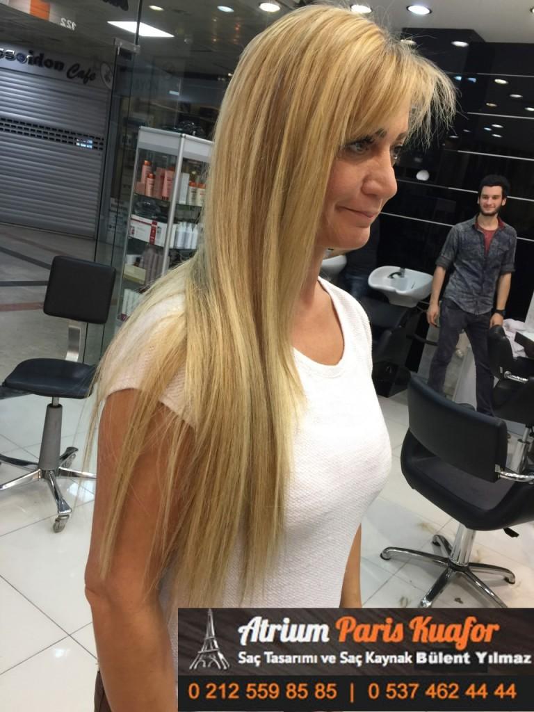 saç kaynak öncesi ve sonrası 106