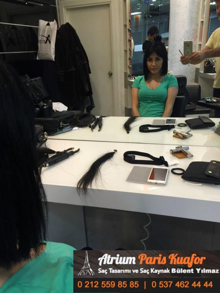 saç kaynak öncesi ve sonrası 116