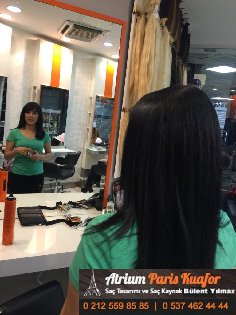 saç kaynak öncesi ve sonrası 119