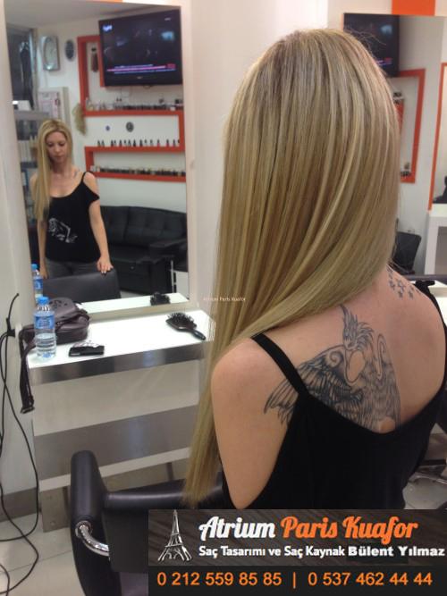 saç kaynak öncesi ve sonrası 12