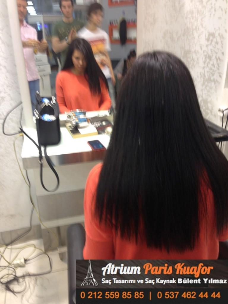 saç kaynak öncesi ve sonrası 121
