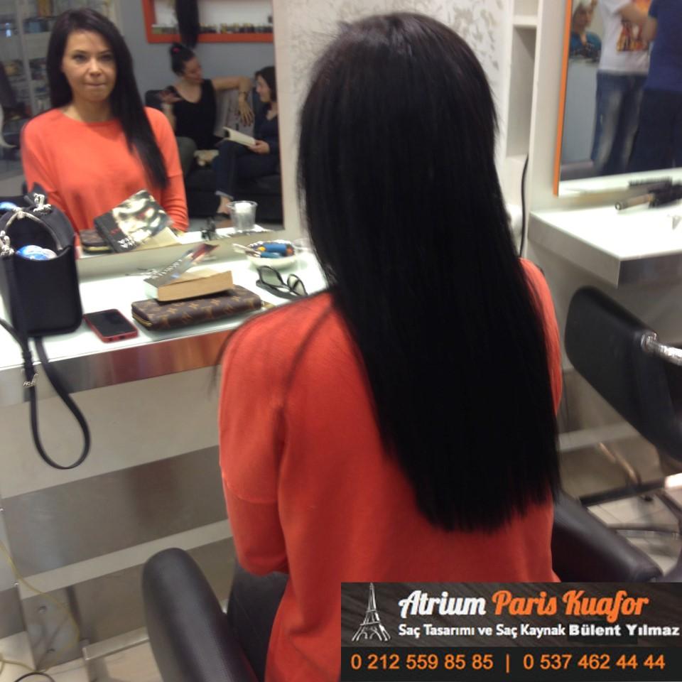 saç kaynak öncesi ve sonrası 122