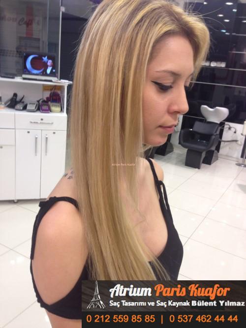 saç kaynak öncesi ve sonrası 13