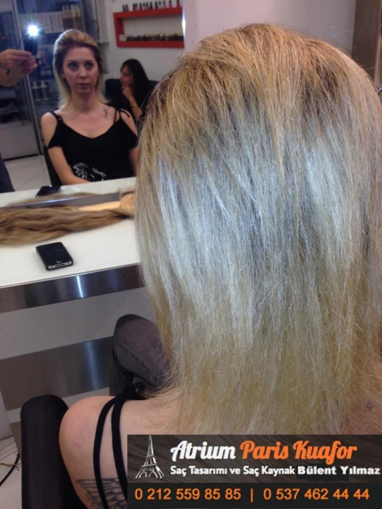 saç kaynak öncesi ve sonrası 135