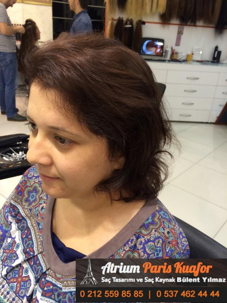 saç kaynak öncesi ve sonrası 140