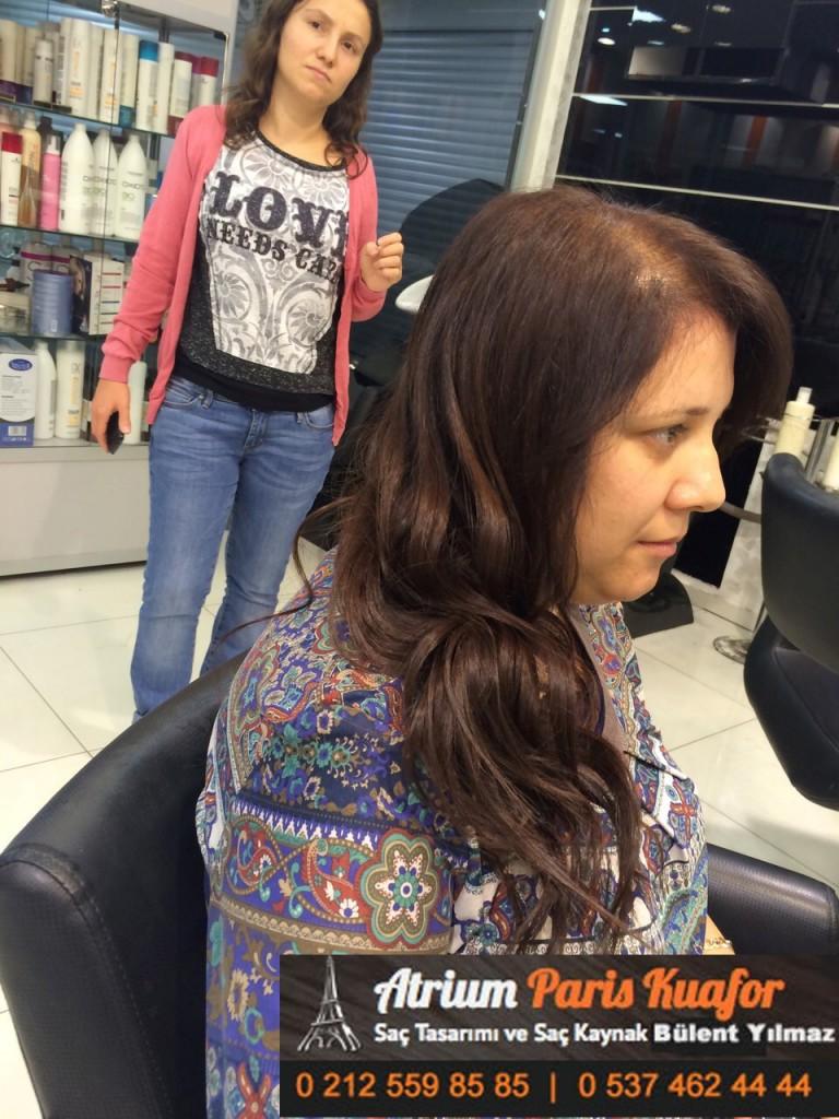 saç kaynak öncesi ve sonrası 144