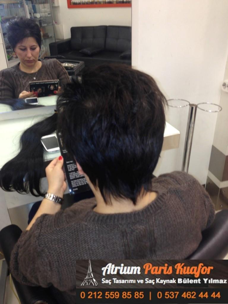 saç kaynak öncesi ve sonrası 145