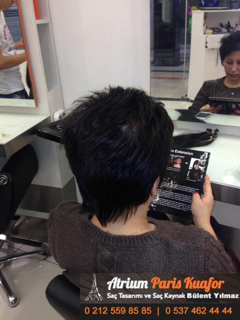 saç kaynak öncesi ve sonrası 146