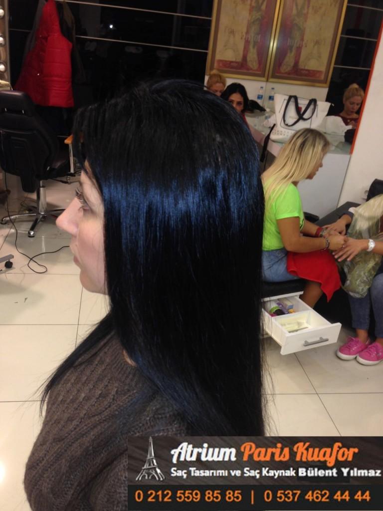 saç kaynak öncesi ve sonrası 148