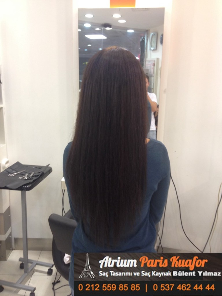 saç kaynak öncesi ve sonrası 149