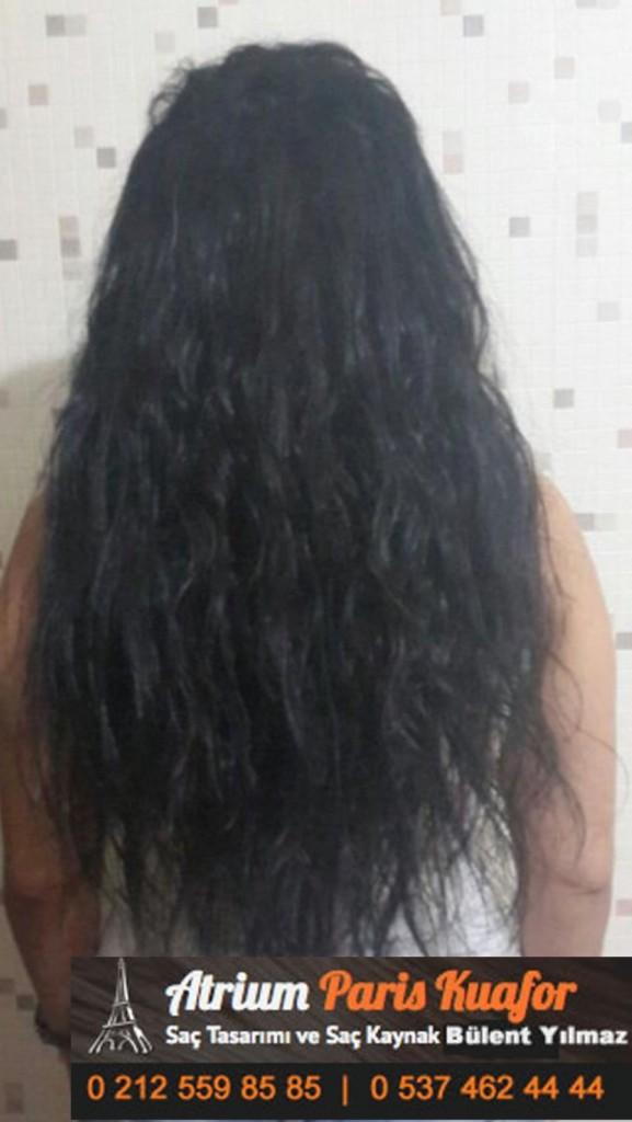 saç kaynak öncesi ve sonrası 154