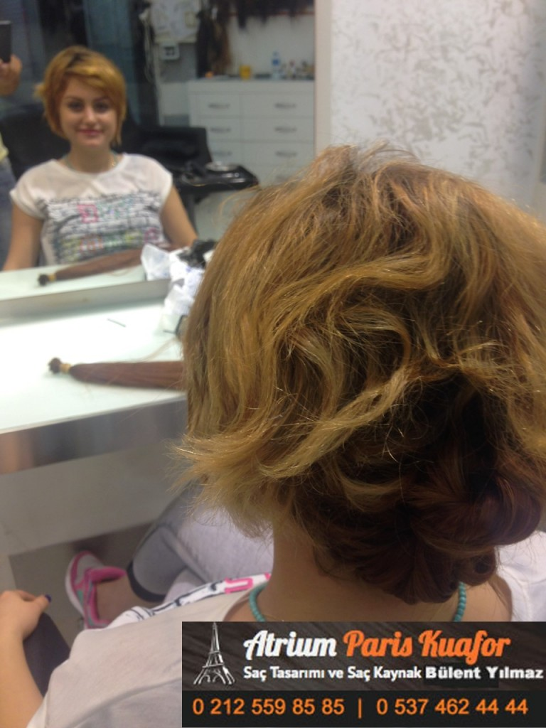 saç kaynak öncesi ve sonrası 155