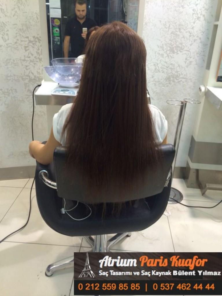 saç kaynak öncesi ve sonrası 158