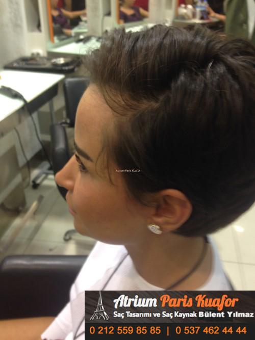 saç kaynak öncesi ve sonrası 16
