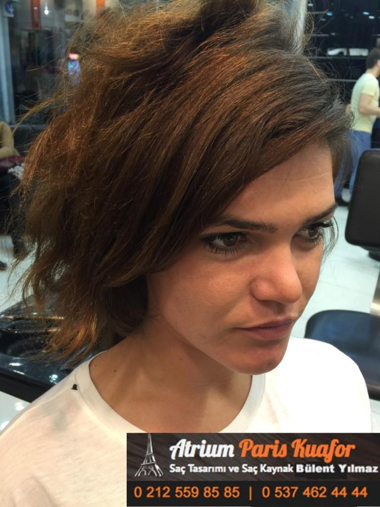 saç kaynak öncesi ve sonrası 160