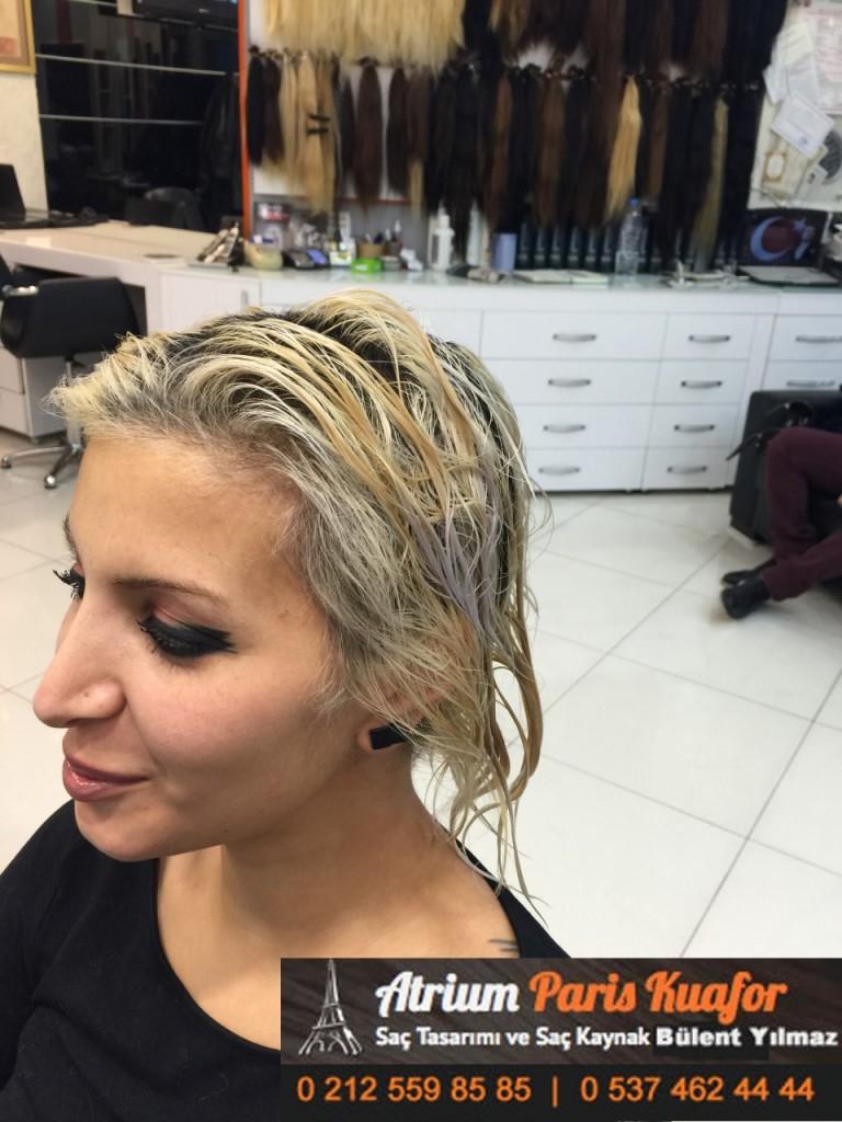 saç kaynak öncesi ve sonrası 165