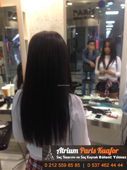 saç kaynak öncesi ve sonrası 17