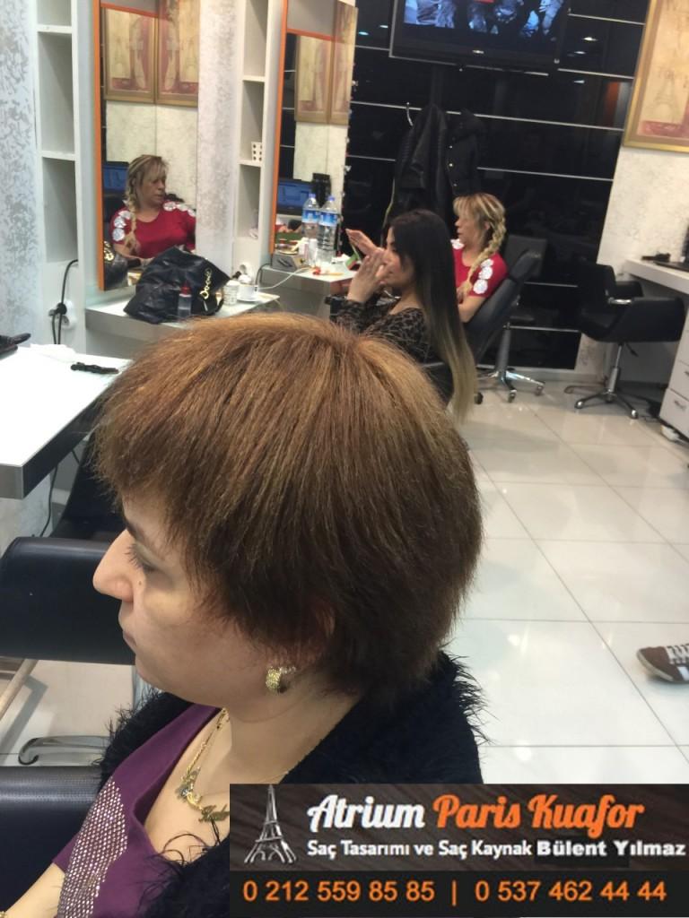 saç kaynak öncesi ve sonrası 170