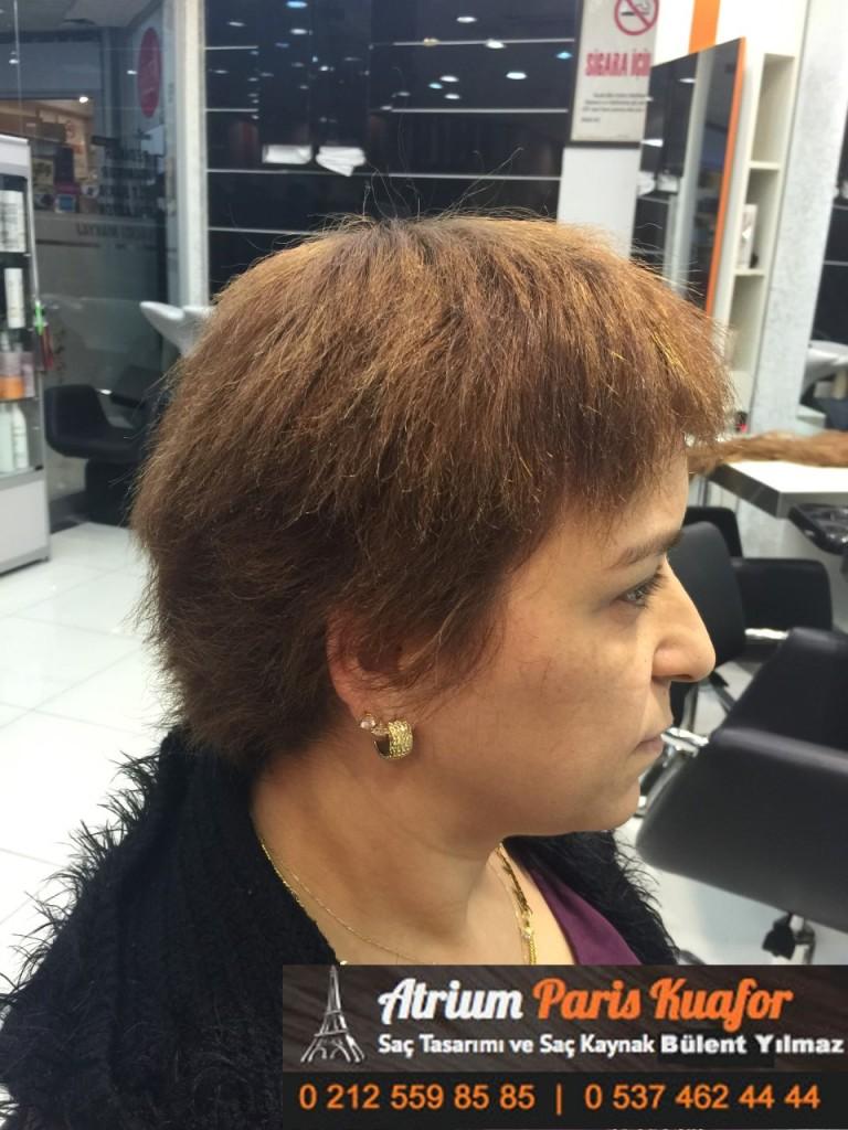 saç kaynak öncesi ve sonrası 171