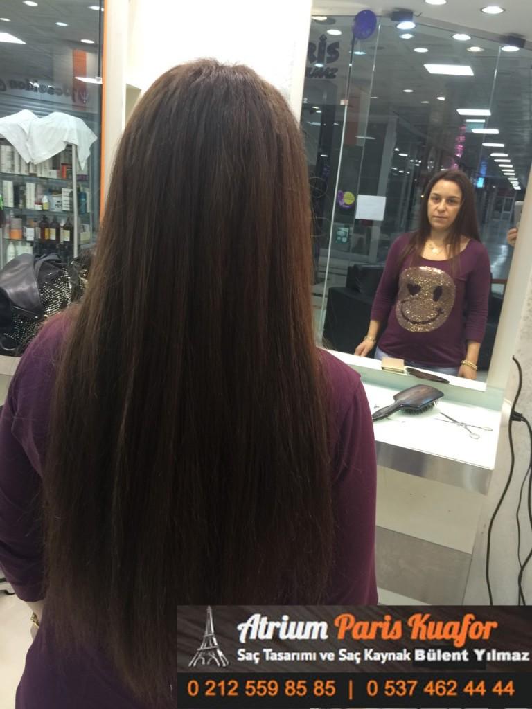 saç kaynak öncesi ve sonrası 173