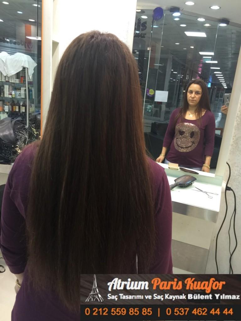 saç kaynak öncesi ve sonrası 174