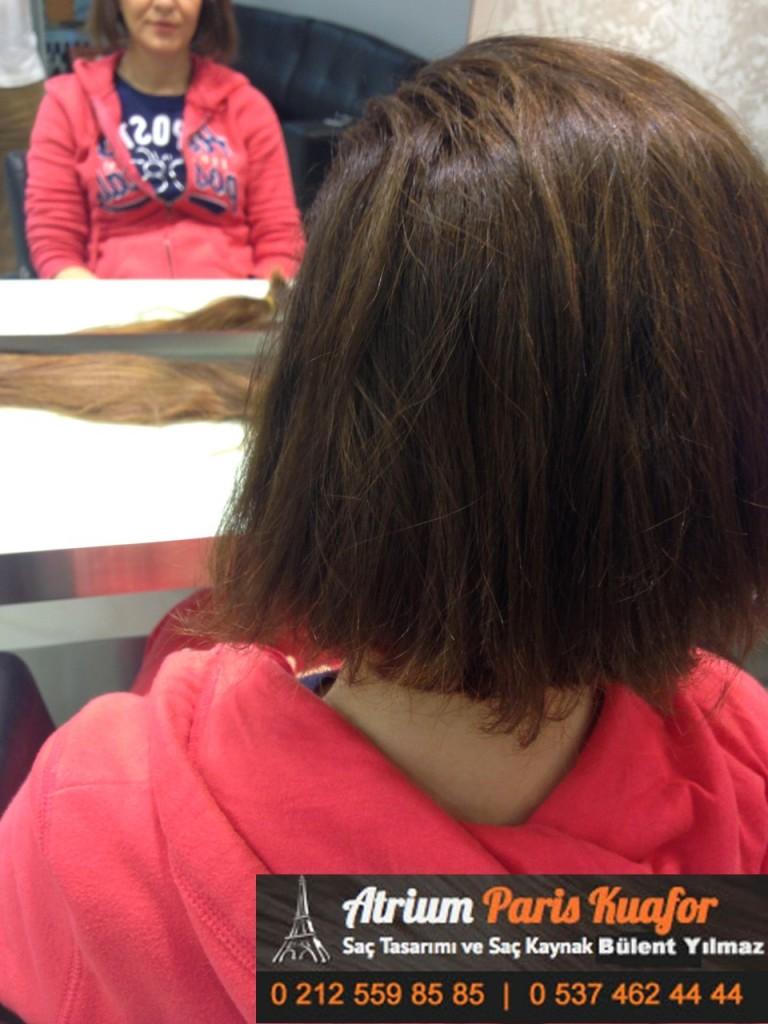 saç kaynak öncesi ve sonrası 175