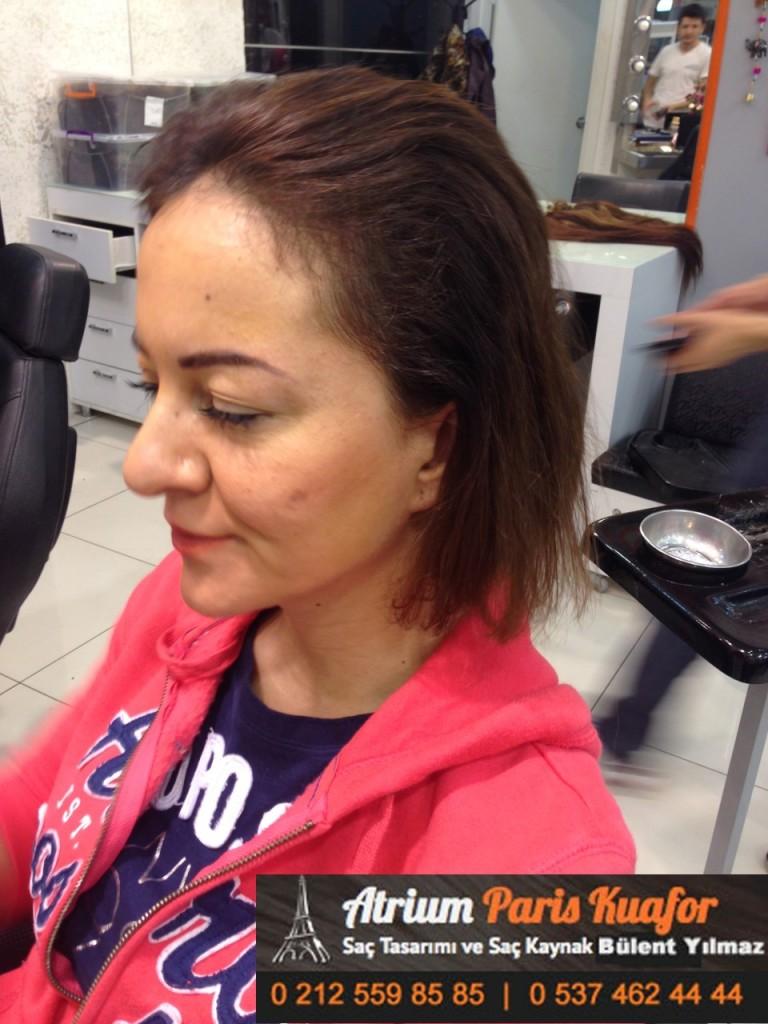 saç kaynak öncesi ve sonrası 176