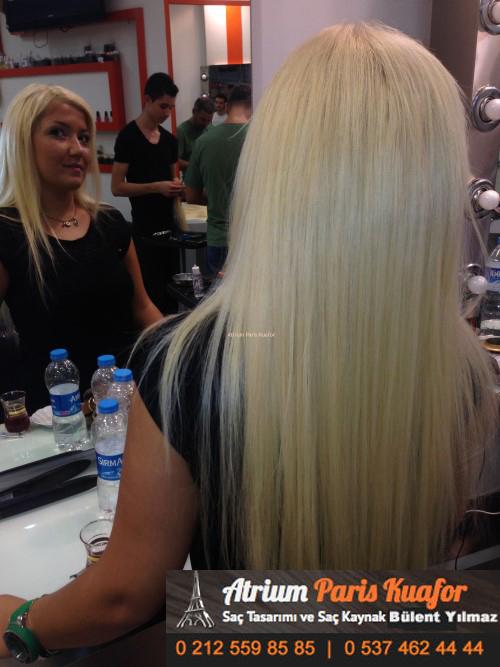 saç kaynak öncesi ve sonrası 18